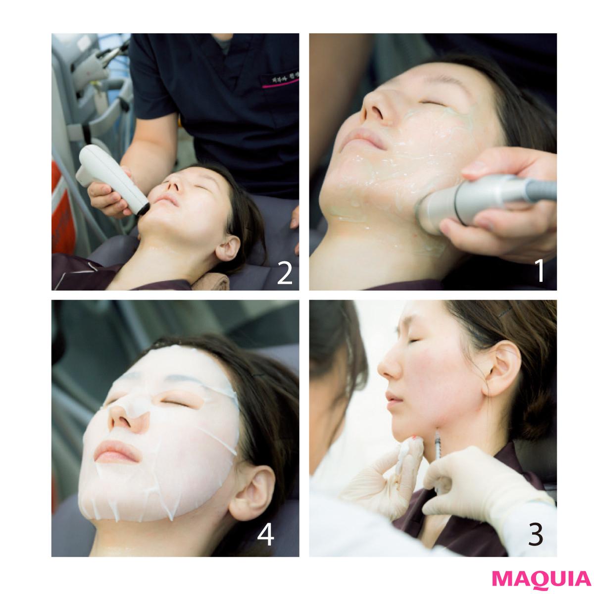 4Dスキャンで小顔を科学する!? 目からウロコの韓国美容医療・潜入ルポ