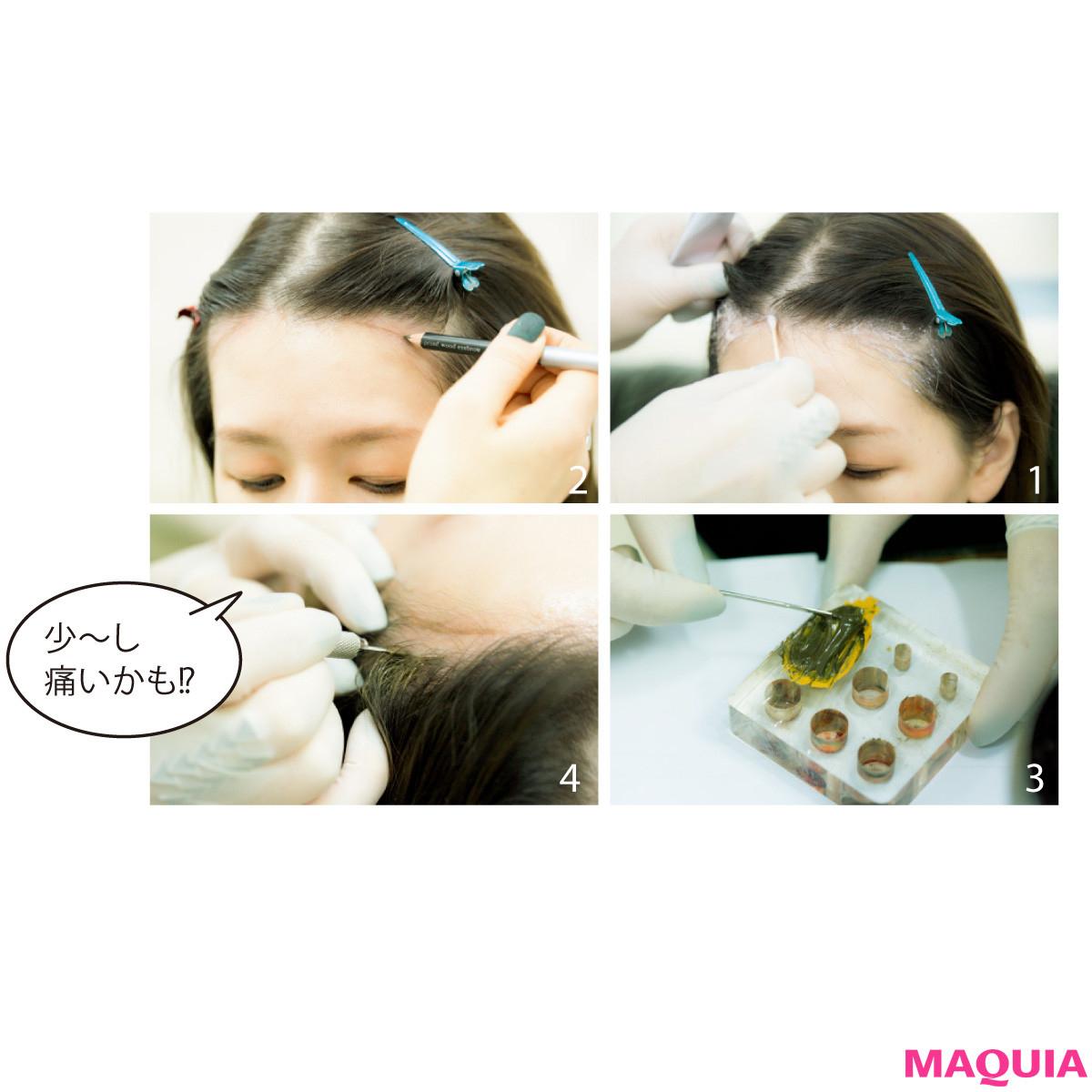 【生え際タトゥー・輪郭注射etc.】目からウロコの韓国・最新小顔美容事情