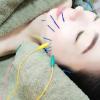 美容鍼で小顔に!?血行促進で内側から輝く美肌へ♡銀座ハリッチ