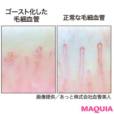 """毛細血管力をチェックするには? 冷えるかどうかを決定づける""""血管力""""のQ&Aにドクターがお答え!_1_4"""