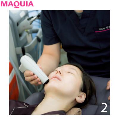 4Dスキャンで小顔を科学する!? 目からウロコの韓国美容医療・潜入ルポ_1_2