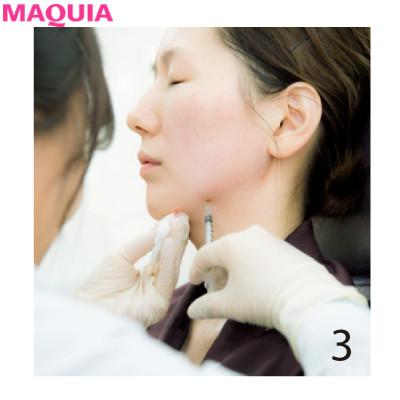 4Dスキャンで小顔を科学する!? 目からウロコの韓国美容医療・潜入ルポ_1_3