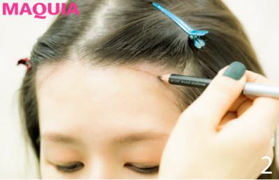 【生え際タトゥー・輪郭注射etc.】目からウロコの韓国・最新小顔美容事情_1_2