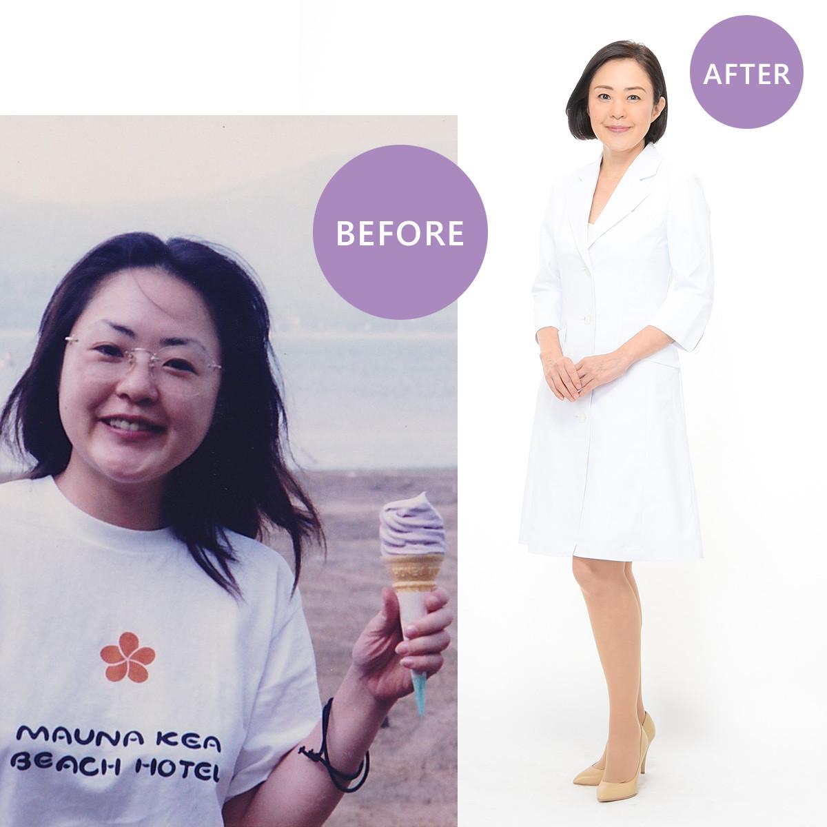 【おすすめは肉野菜炒めダイエット! 1ヶ月で20kg痩せた管理栄養士・麻生れいみさん】Before/after