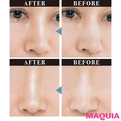 ご立派鼻をマイルド化! 顔立ちまで変える鼻補正テク、教えます_1_4