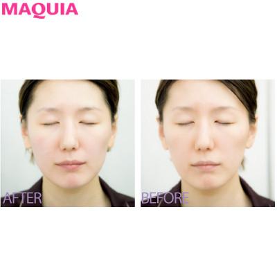 4Dスキャンで小顔を科学する!? 目からウロコの韓国美容医療・潜入ルポ_1_5