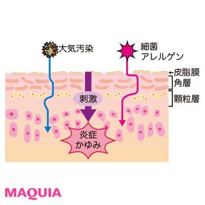 これって乾燥肌? 乾燥肌と敏感肌の違いは? 乾燥の見極め方をプロが教えます_1_6