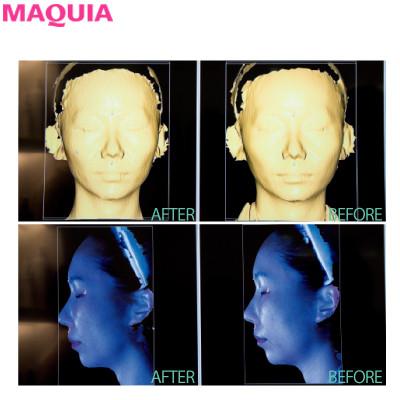 4Dスキャンで小顔を科学する!? 目からウロコの韓国美容医療・潜入ルポ_3_5