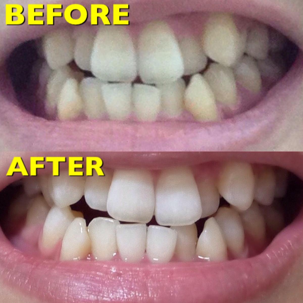 【30までにしたいこと②歯編】一度でもこの白さ!安い・痛みなし・短時間でホワイトニング