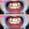 【歯のホワイトニング】安くて痛みなし!一度で白さを実感*銀座デンタルホワイト
