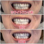 ホワイトニングってオフィスとホーム どっちの方が歯が白くなる?オススメは?検証してみた!