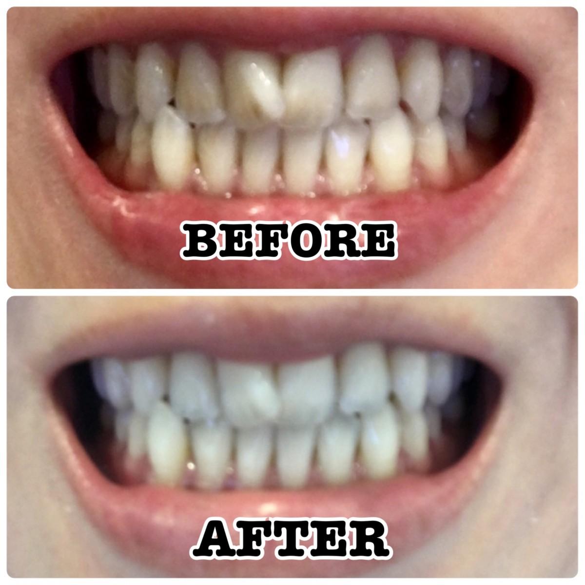 1か月!体当たりで実証しました!おうちで出来る!歯を白くする方法とアイテム3つ!