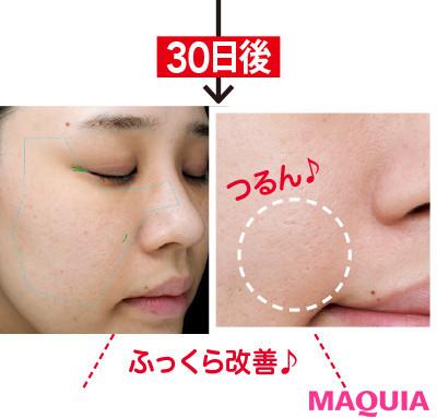 【アンチエイジング化粧品】ドクターシーラボのエイジングケア美容液3