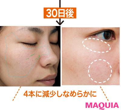 【アンチエイジング化粧品】オルビスの美容液3