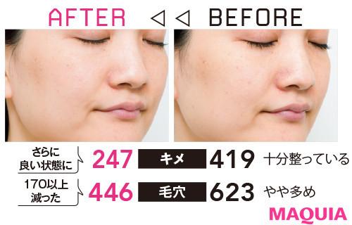 【アンチエイジング化粧品の効果】Q 保湿しているのに乾燥肌。どんなケアがおすすめ?