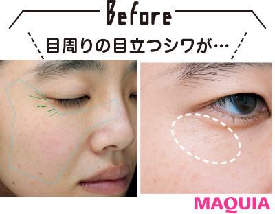 【目もとのシワ改善】ディセンシアの全顔用シワ美容液2