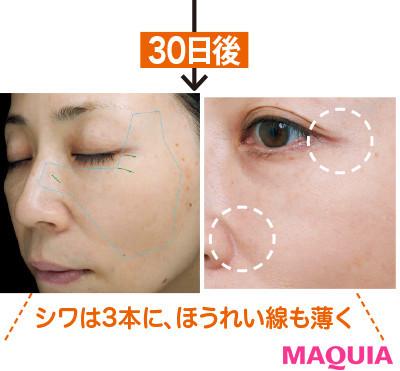 【アンチエイジング化粧品】KANEBOのシワ用セラムをガチ試し! 目元の乾燥&シワ悩みは30日でどうなった?3