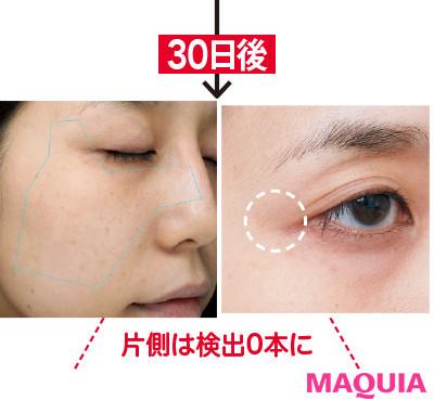 【アンチエイジング化粧品】ナビジョンの集中ケア3