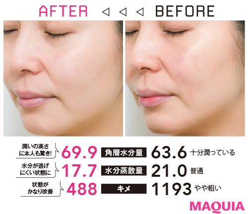 【アンチエイジング化粧品の効果】Q ここ数年でゆらぎ肌に。アレルギーもあるし製品選びに困っています