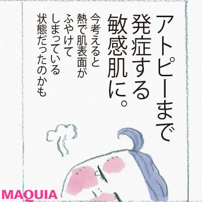 【乾燥肌におすすめのスキンケア】ビューティエディター前野さちこさんは超乾燥肌をこうして克服!3