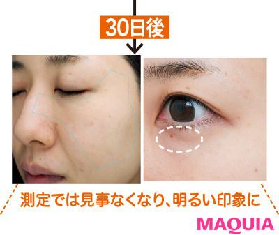 【アンチエイジング化粧品】エピステームの新時代アイクリーム3
