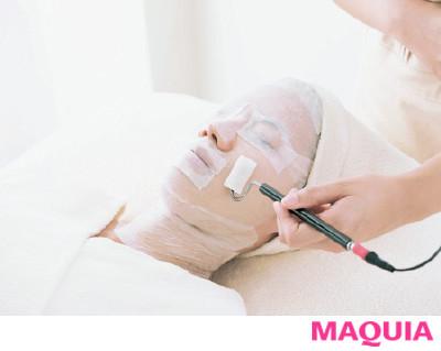 【肌がきれいにならないと悩むあなたへ】Q 全タイプのニキビに効果的な治療は?
