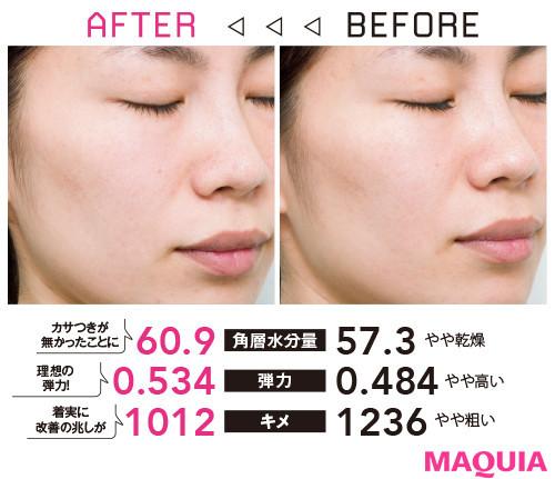 【アンチエイジング化粧品の効果】Q 乾燥、敏感、肌不調。肌力の弱さを痛感……。どうにかなりますか?