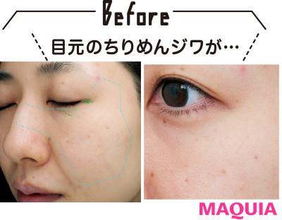 【アンチエイジング化粧品】エピステームの新時代アイクリーム2