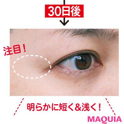【目もとのシワ改善】クレ・ド・ポー ボーテのシワ改善美容液3