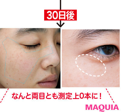 【目もとのシワ改善】ディセンシアの全顔用シワ美容液3