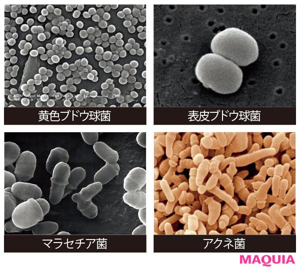 【菌活 | 美肌菌って? 発酵食品や飲み物など、スキンケア・ダイエット・ボディケアにおすすめの菌活まとめ】_Q つまり、菌の常識が変わってきた?
