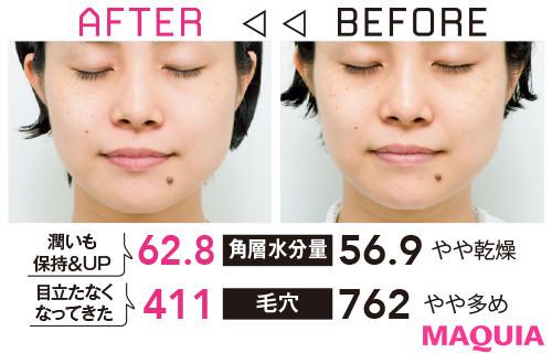 【アンチエイジング化粧品の効果】Q 顎のラインがスッキリしたら小顔見えしそうな気がしています