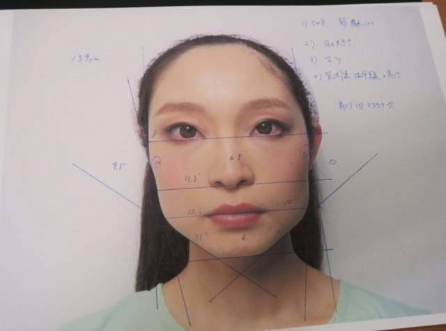 MYBESTサロン☆エラ張り・頬張り・左右非対称を修正