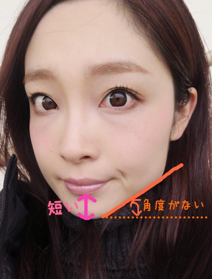 顔顎矯正リビジョン2回目レポ☆「このエラは小さくできます。」